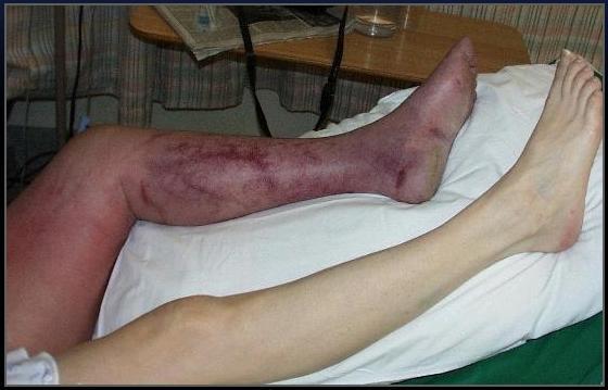 Varicosity su una gamba e uno sport
